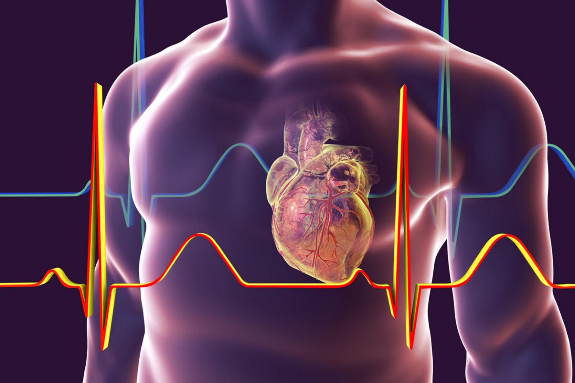 Μεγαλύτερος ο κίνδυνος καρδιακής ανεπάρκειας ή θανάτου μετά από ένα έμφραγμα για τις γυναίκες