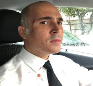 Μπογδάνος: Ατύχημα στη βροχή! Η φωτογραφία με το ματωμένο πουκάμισο