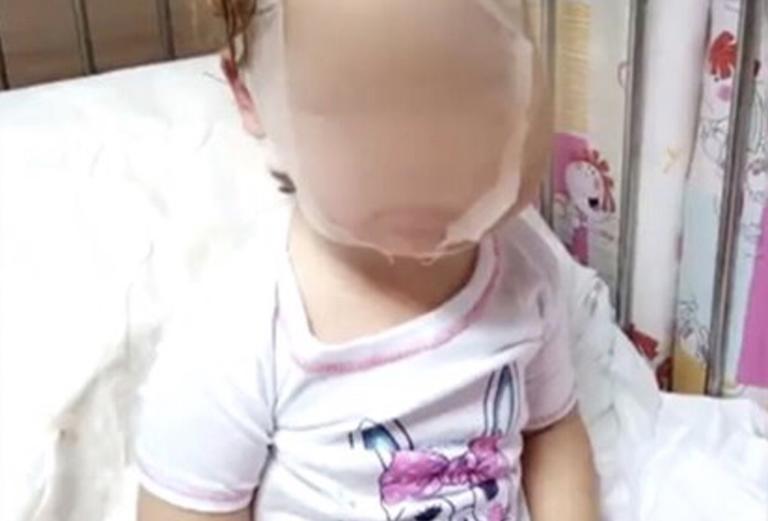 Τι κάνει σήμερα η τετράχρονη που δέχθηκε άγρια επίθεση από πιτ μπουλ πριν από 9 μήνες