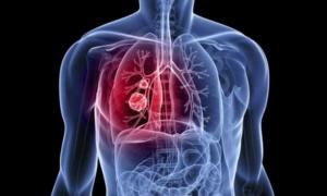 """""""Έξυπνη"""" μπλούζα καταγράφει την αναπνοή και παρακολουθεί τη λειτουργία των πνευμόνων"""