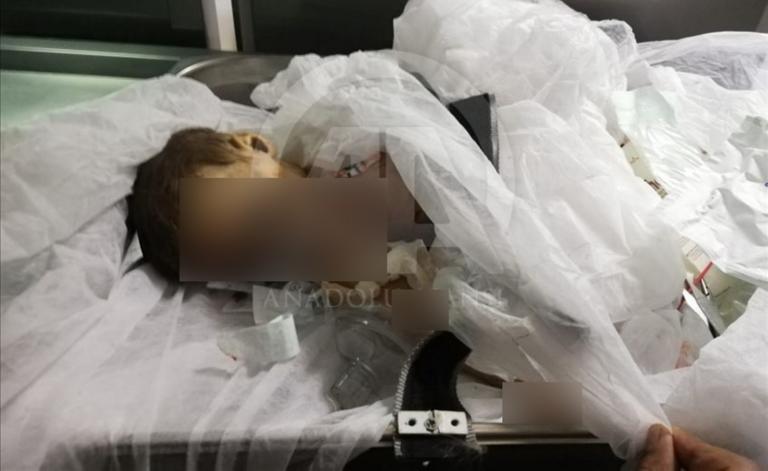Τουρκία: Φρίκη! Νεκρό μωρό σε αιματηρά αντίποινα στον Ερντογάν! Σοκαριστικές εικόνες