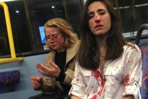 Έτσι έγινε η ομοφοβική επίθεση εναντίον δυο γυναικών στο Λονδίνο [ΣΚΛΗΡΕΣ ΕΙΚΟΝΕΣ]