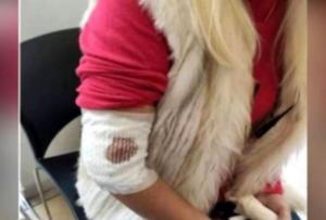 Λαμία: Απίστευτος εφιάλτης για γυναίκα στα δόντια αδέσποτου σκύλου [video]