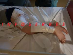 Σέρρες: Εξιτήριο στον 9χρονο μαθητή που δέχτηκε άγρια επίθεση από σκυλιά – Το παιδί παραμένει σοκαρισμένο!