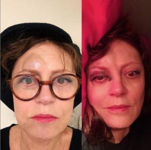 Το ατύχημα της Σούζαν Σάραντον – Δείτε πως έγινε