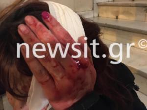 """Επεισόδια – Πολυτεχνείο: """"Με χτυπούσαν με τα γκλομπ""""! Σοκάρει η μαρτυρία 20χρονης – video"""