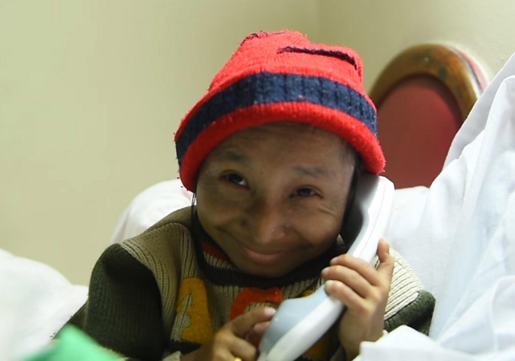 Καγκέντρα Θάπα Μάγκαρ: Πέθανε ο πιο μικρόσωμος άνθρωπος του κόσμου! video