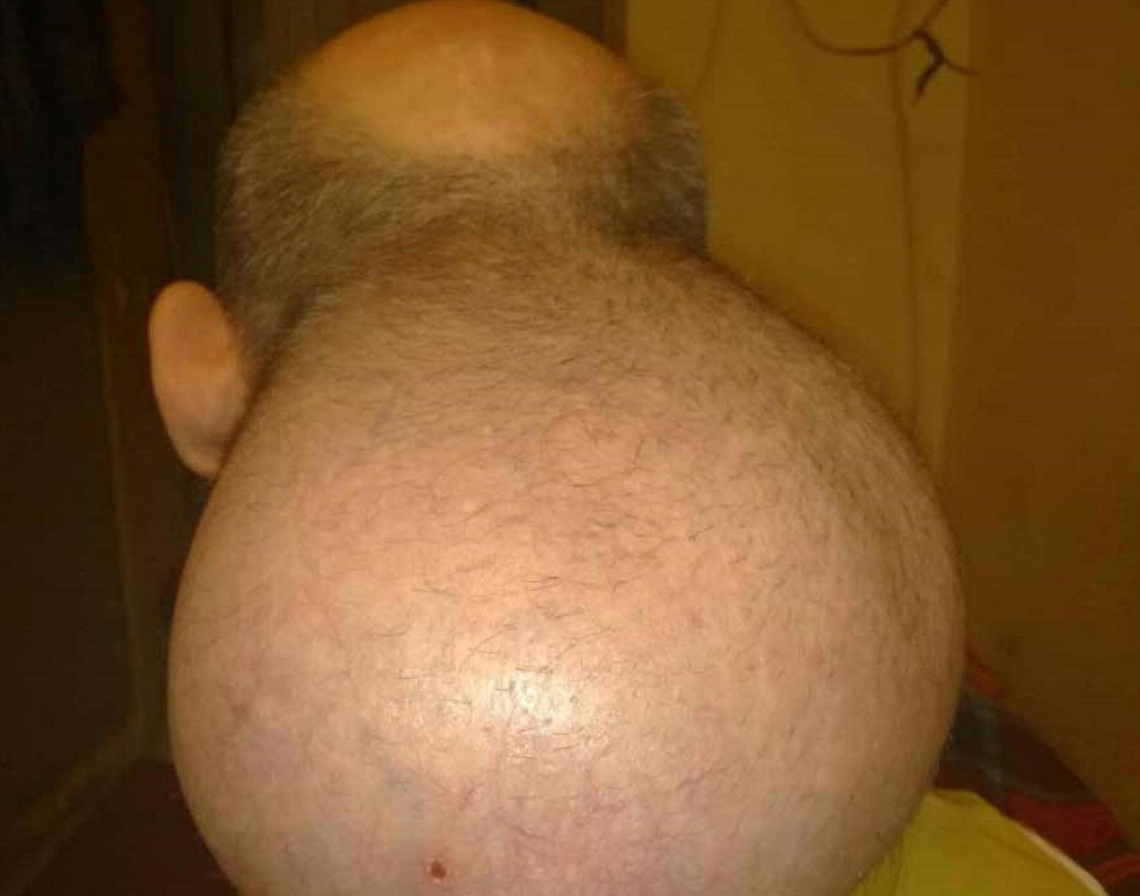 Σέρρες: Κρατούμενος με όγκο στο κεφάλι που μεγαλώνει συνεχώς! Το ξέσπασμα και η κραυγή αγωνίας του [pic, video]