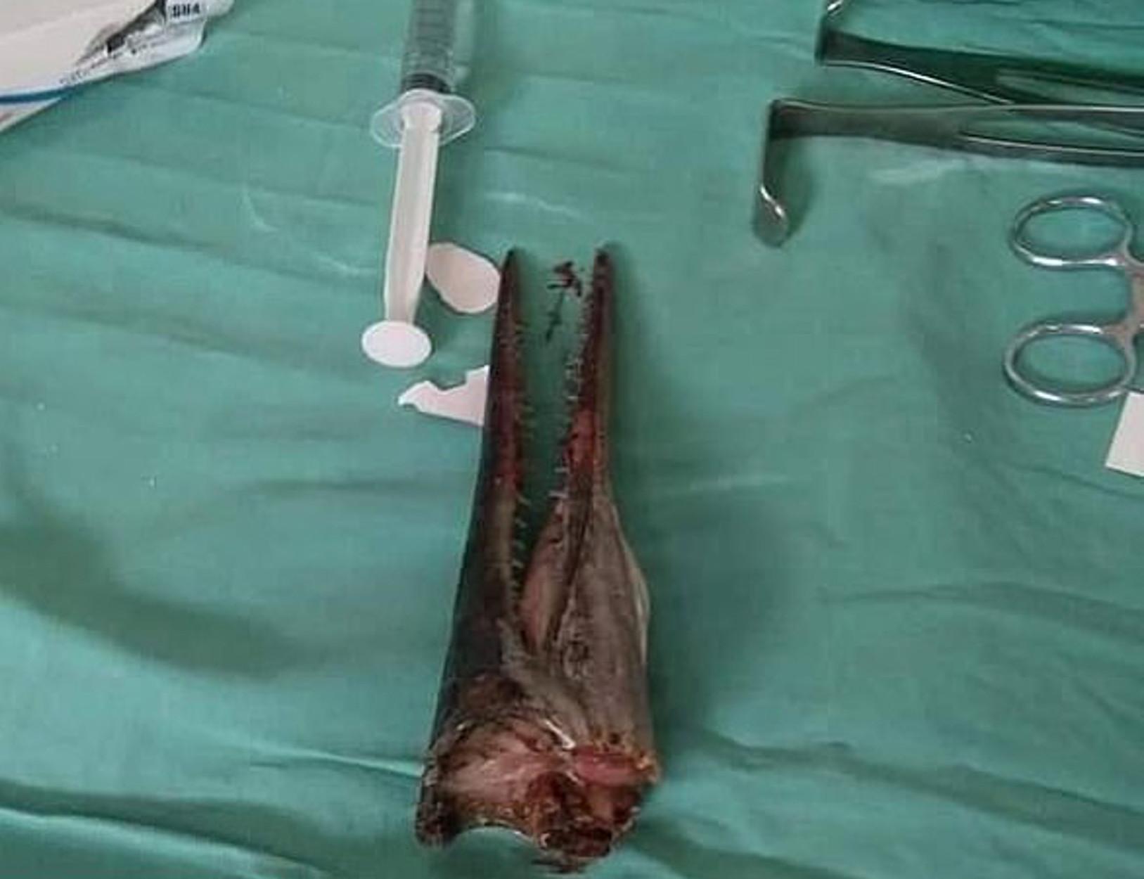 Ψάρι πήδηξε από το νερό και κάρφωσε 16χρονο στον λαιμό! ΣΚΛΗΡΕΣ ΕΙΚΟΝΕΣ