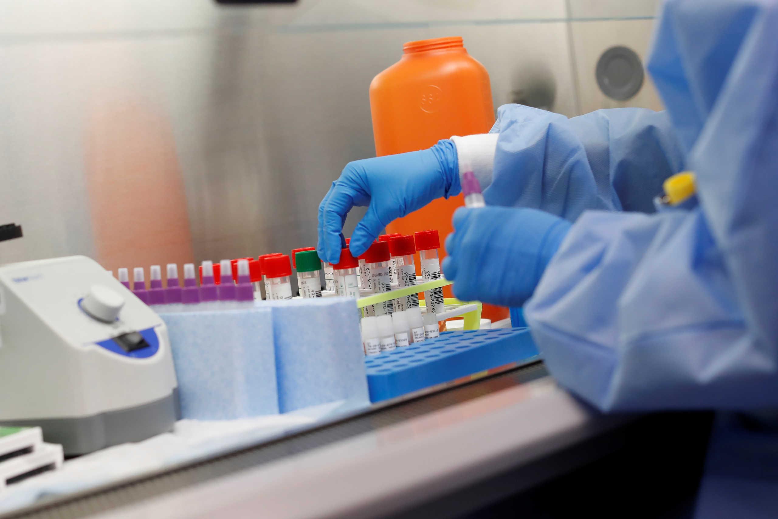 Ρωσία: Τα φάρμακα που συνέστησε το υπουργείο Υγείας για τον κορονοϊό αποδείχθηκαν αποτελεσματικά
