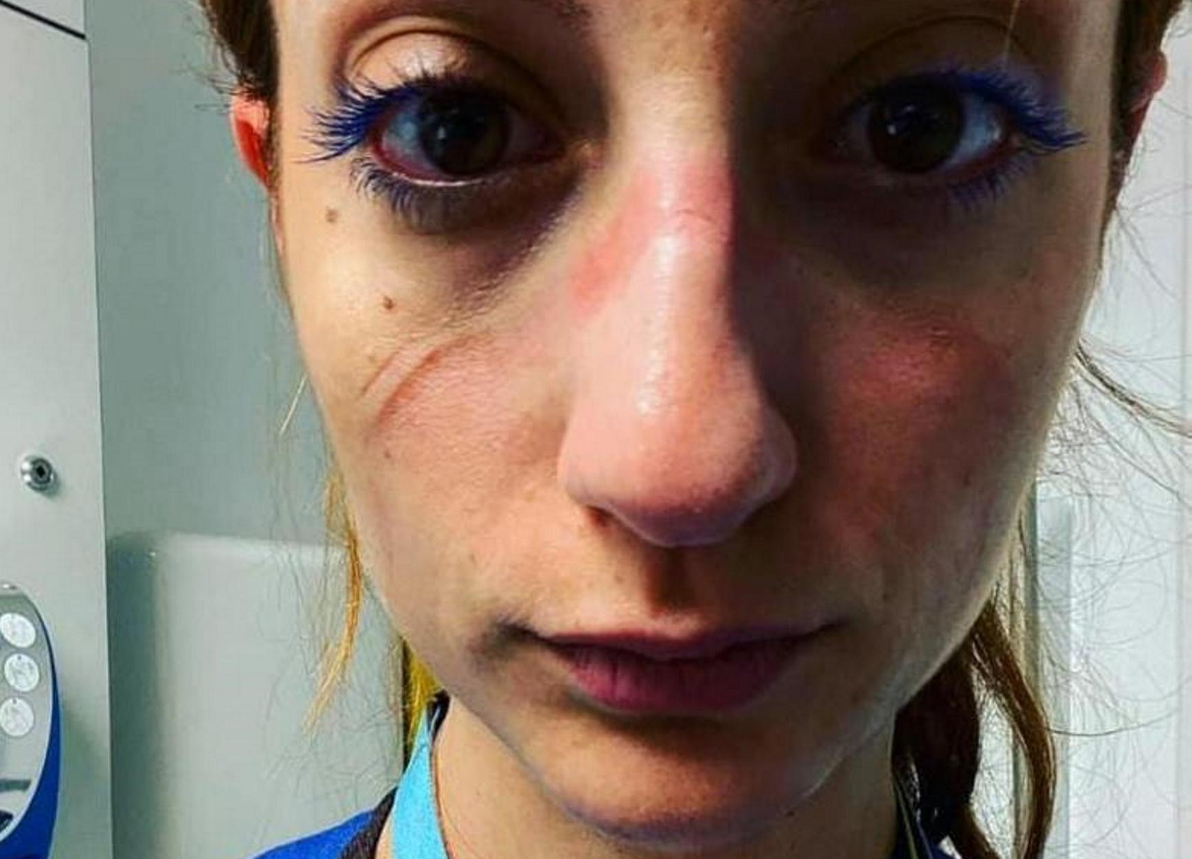 """""""Αυτό είναι το πρόσωπό μου"""" – Συγκλονίζει η Ελληνίδα αναισθησιολόγος του νοσοκομείου της Οξφόρδης"""