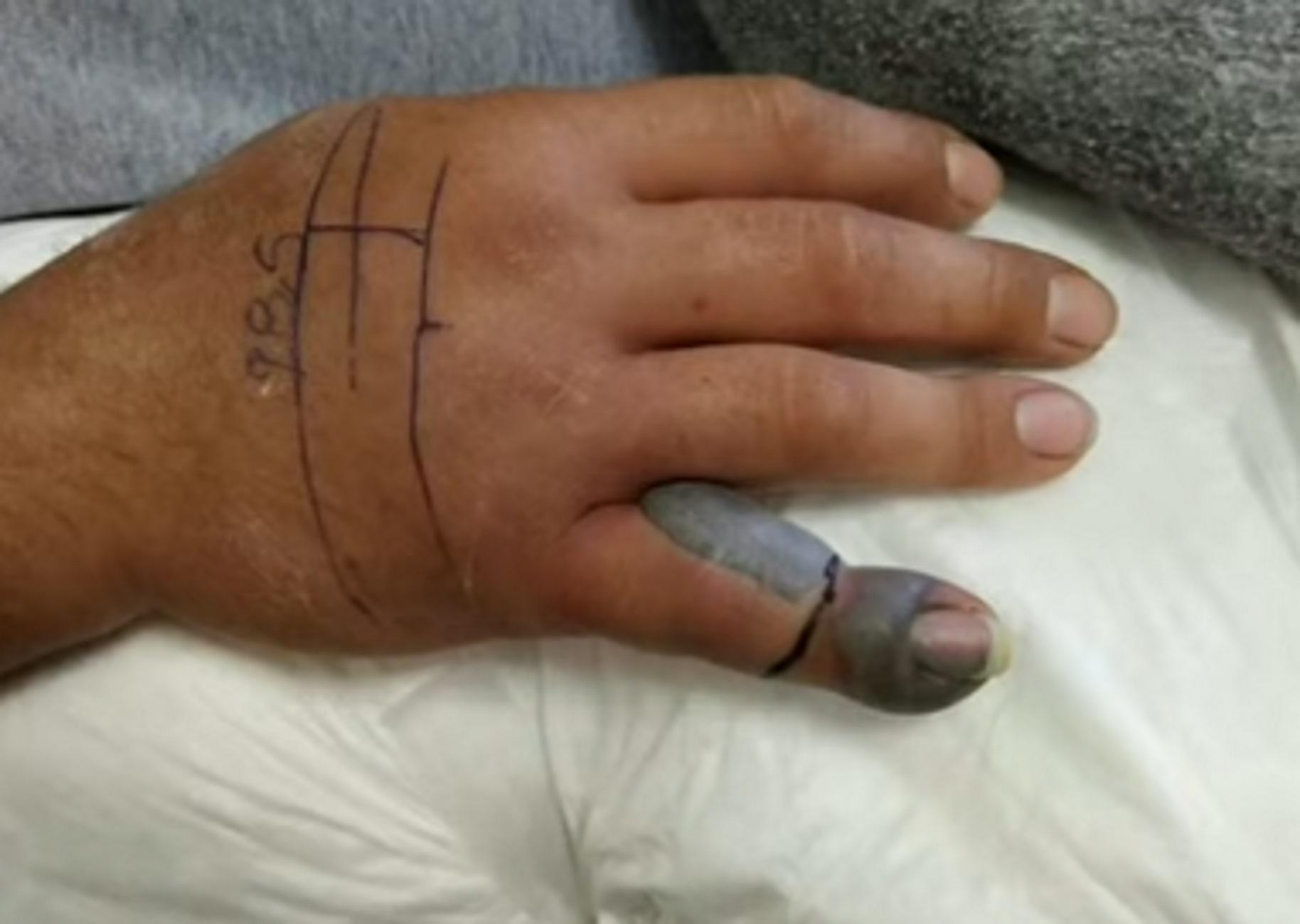 Το φίδι παραλίγο να του κόψει το δάχτυλο! Τον δάγκωσε οχιά και τον βρήκαν σε αυτή την κατάσταση (Βίντεο)