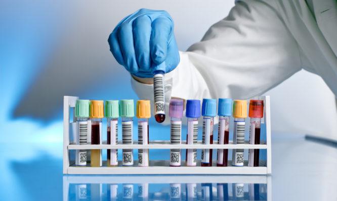 Κορονοϊός: Οι μεταγγίσεις πλάσματος μειώνουν τη θνησιμότητα στους βαριά ασθενείς