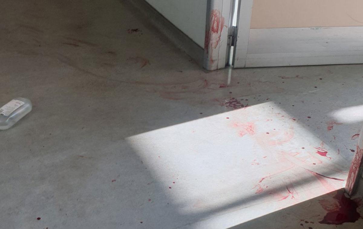 Ο άνδρας που μαχαίρωσε νοσηλεύτρια στο Αττικόν πίστευε ότι τον χειρούργησαν άδικα