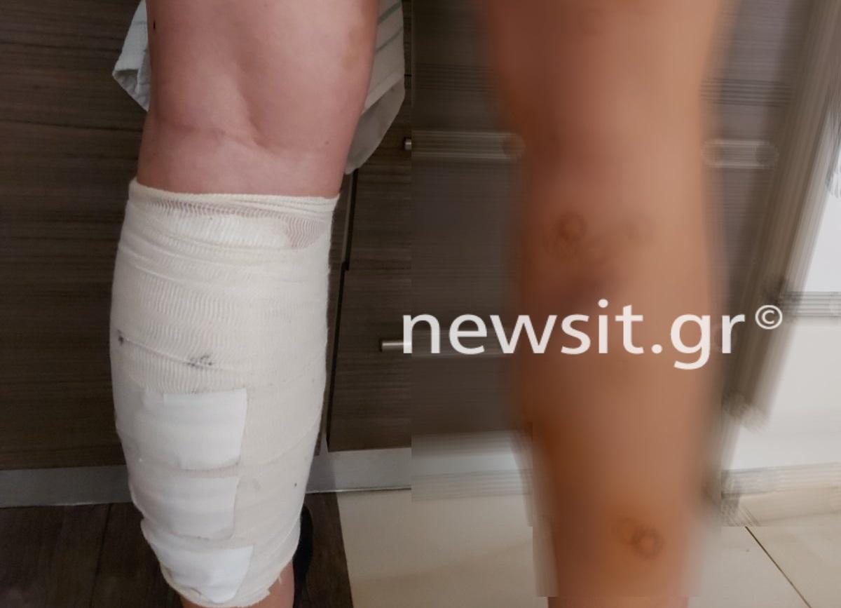 """Συγκλονίζει η μητέρα της 17χρονης που δέχθηκε 58 δαγκώματα από αγέλη σκύλων! – """"Έσερνε τα σκυλιά με τα πόδια για να σωθεί""""!"""