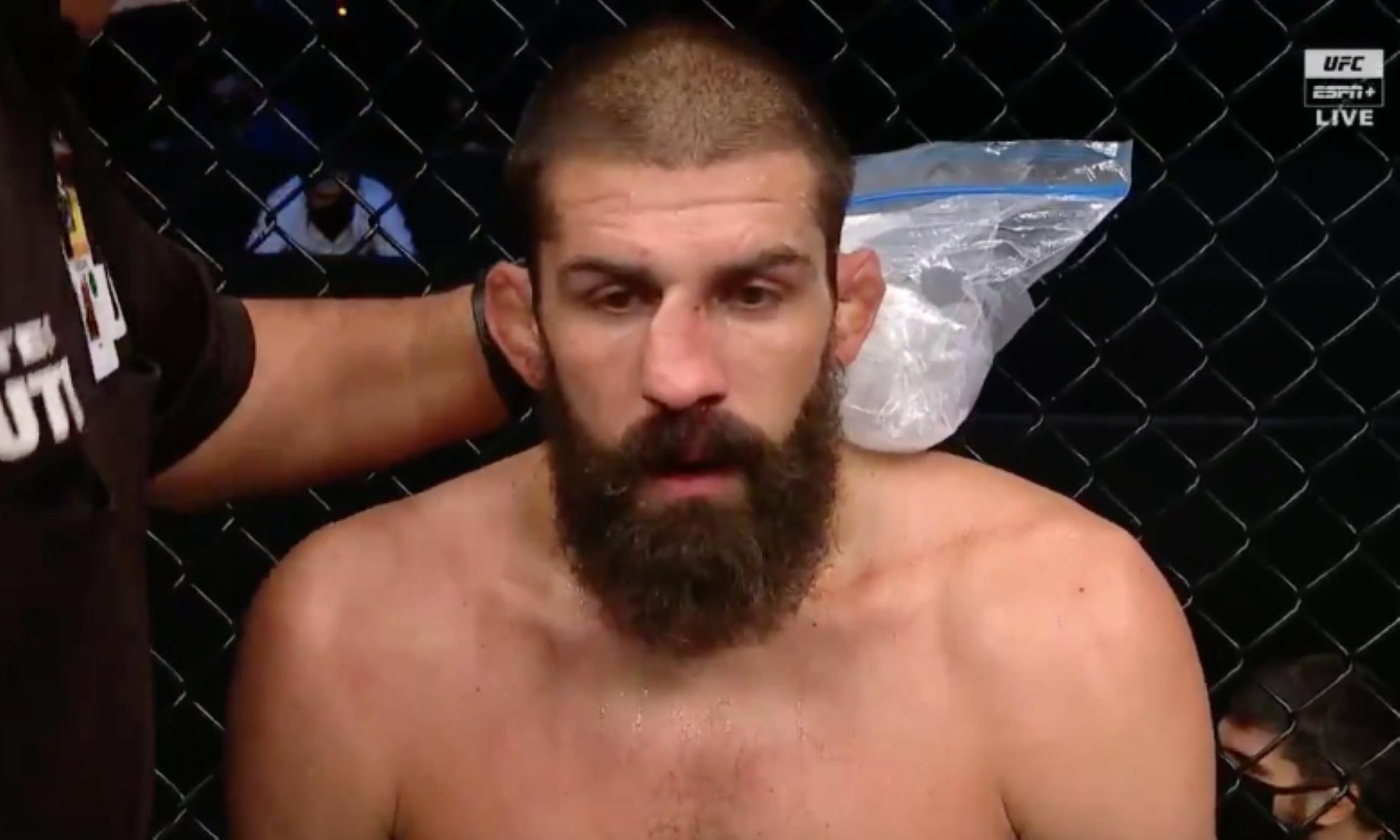 UFC: Ίσιωσε τη σπασμένη μύτη του στο δεύτερο γύρο του αγώνα!