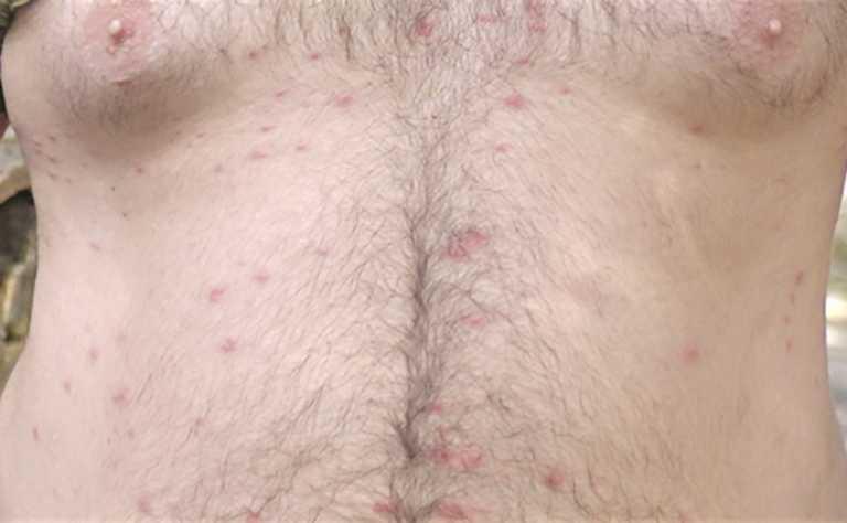 Κρήτη: Ένα ολόκληρο χωριό έπαθε αλλεργία! Φωτογραφίζονται και ζητούν απαντήσεις από ειδικούς (Φωτό και Βίντεο)