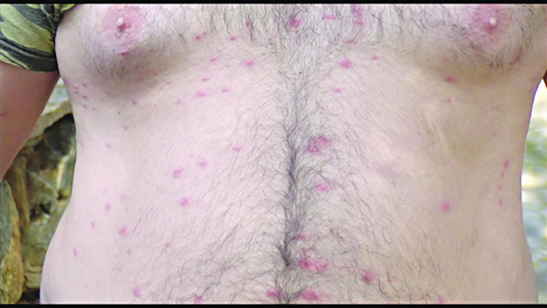 Κρήτη: Ένα ολόκληρο χωριό έπαθε αλλεργία! Φωτογραφίζονται και ζητούν απαντήσεις από ειδικούς (pics, vid)
