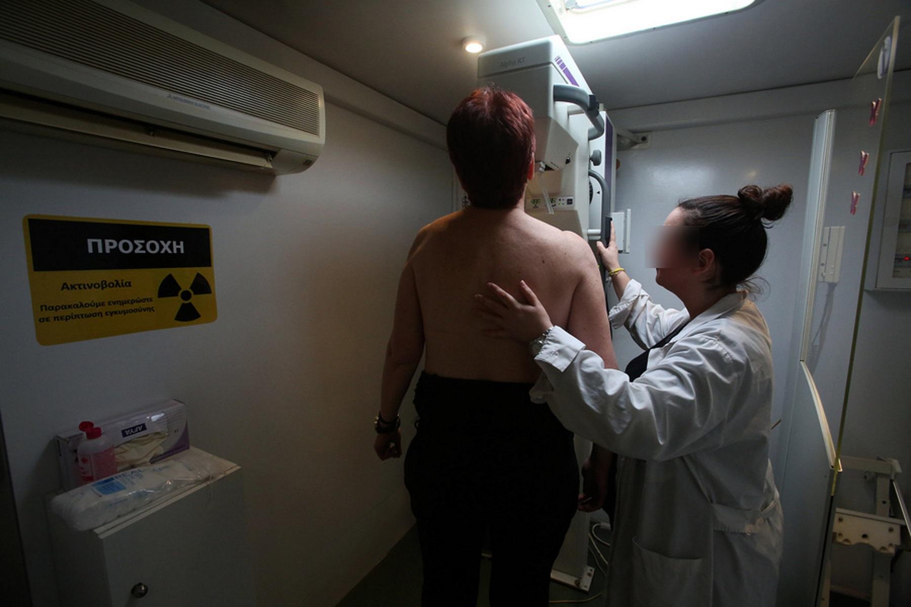 Από 10 Νοεμβρίου οι δωρεάν ψηφιακές μαστογραφίες για γυναίκες 49-50 ετών