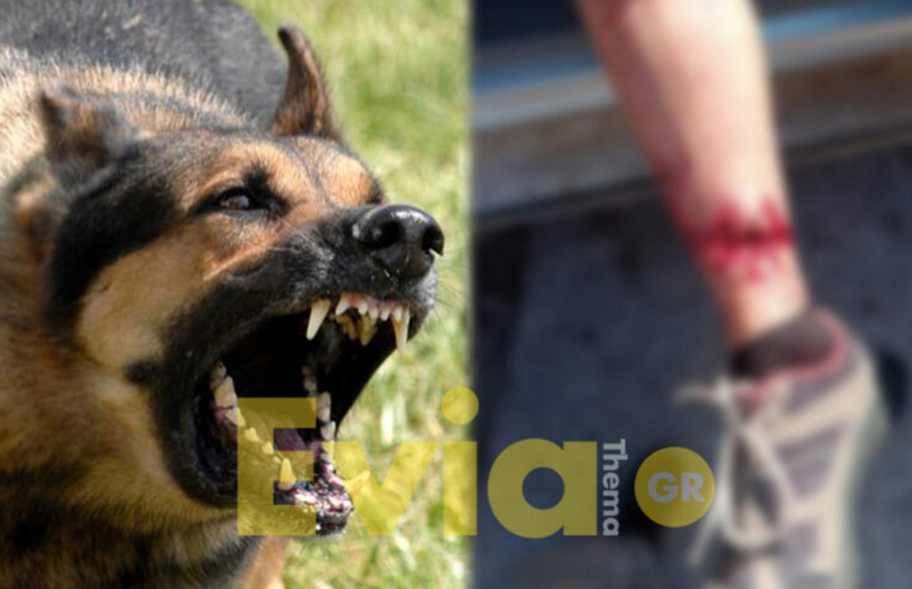 Ερέτρια: 55χρονη δέχθηκε άγρια επίθεση από αδέσποτα και παραλίγο να χάσει το πόδι της (pics)