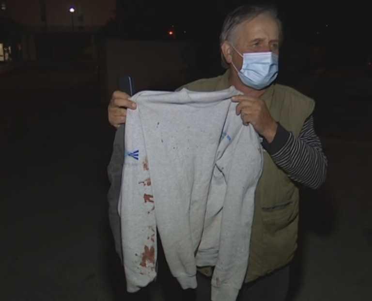 Μεσσηνία: Σακάτεψαν στο ξύλο νεαρό έξω από το σπίτι του! Οργή για τους δράστες της επίθεσης (Φωτό)