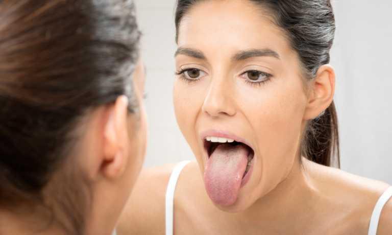 """Κορονοϊός: Πώς φαίνεται στο στόμα και τι είναι η """"γλώσσα COVID"""" που προκαλεί"""