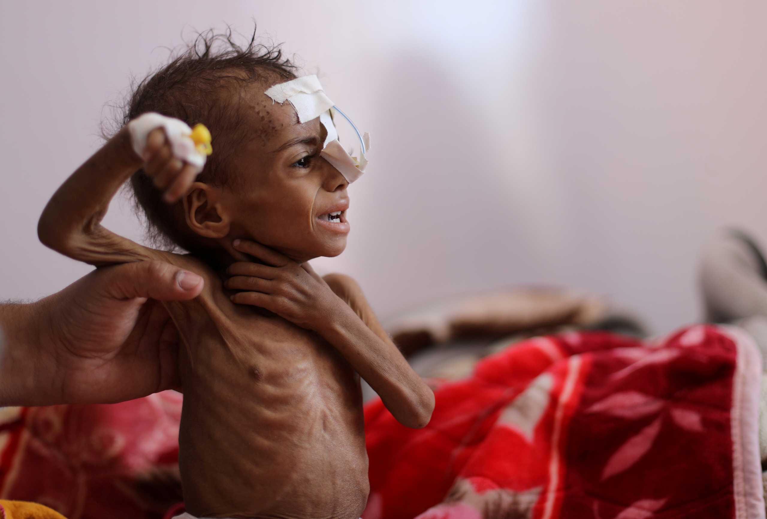Υεμένη: Τα μισά από τα παιδιά κάτω των 5 ετών θα υποφέρουν από υποσιτισμό το 2021