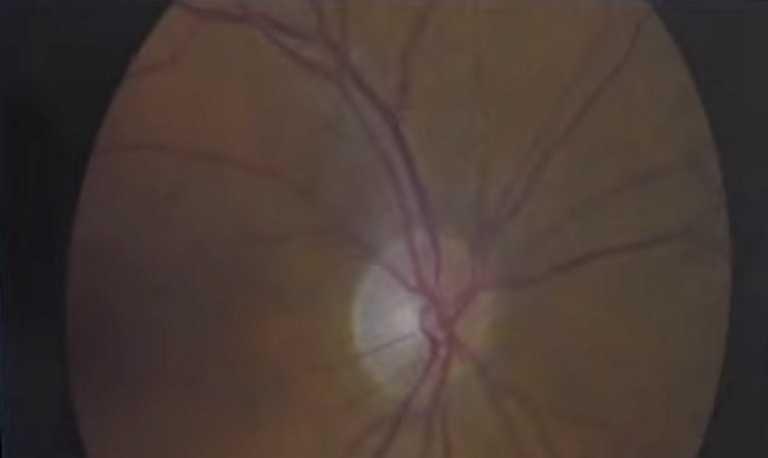 Γλαύκωμα: Ανακαλύφθηκαν 127 γονίδια κινδύνου για τα μάτια – Πάνω από 75 εκατ. οι πάσχοντες