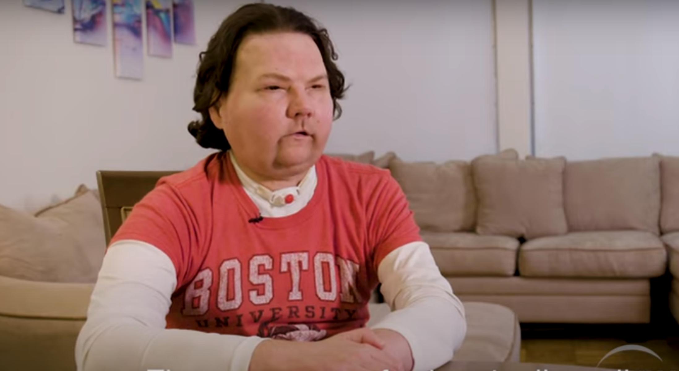 ΗΠΑ: Για πρώτη φορά επιτυχημένη τριπλή μεταμόσχευση προσώπου και χεριών