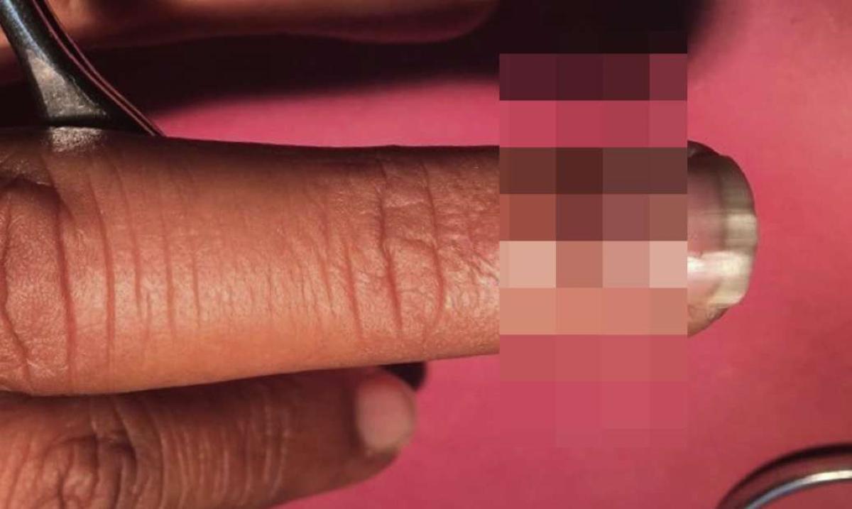 """Αντέχετε; 28χρονος έβγαλε ένα """"κέρατο"""" στο νύχι του χεριού! Τι είπαν οι ειδικοί που το είδαν"""