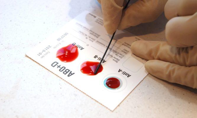 Κορονοϊός: Να γιατί κινδυνεύουν περισσότερο όσοι έχουν αυτή την ομάδα αίματος