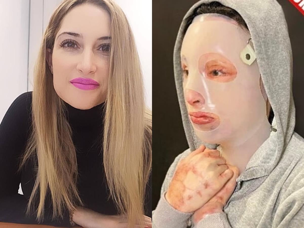 Επίθεση με βιτριόλι: «Θα είναι επίπονο αλλά θα παραστώ στη δίκη» δηλώνει η Ιωάννα Παλιοσπύρου
