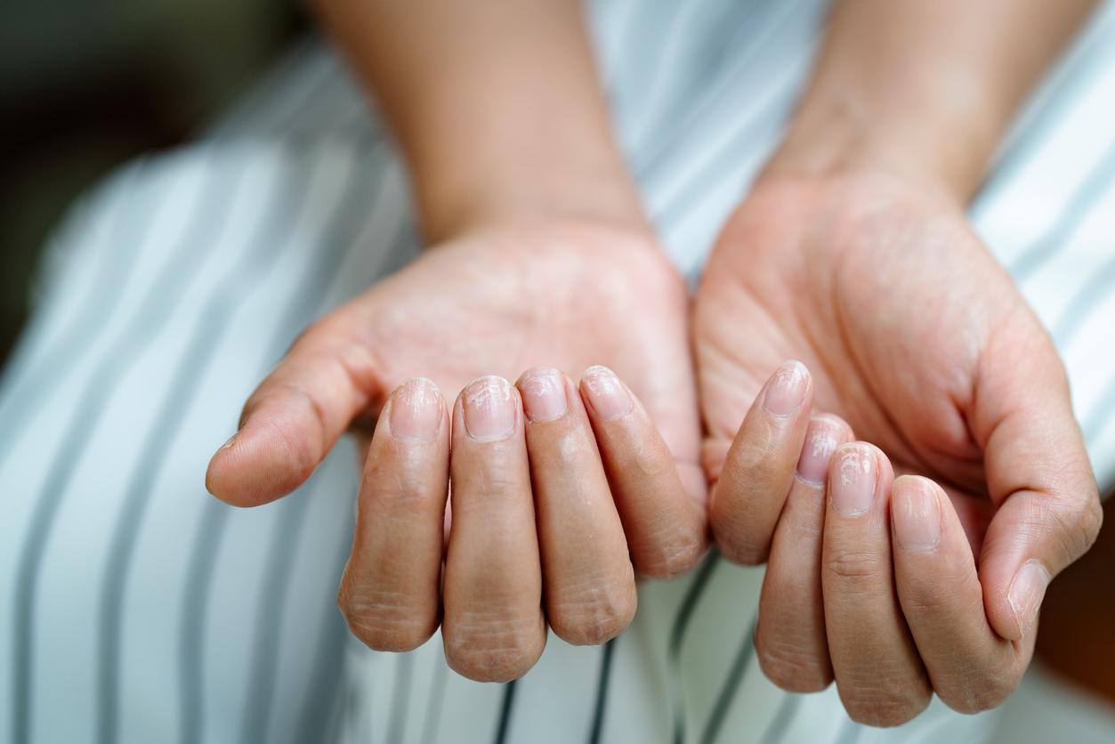Αν δείτε αυτό στα νύχια σας, πρέπει να ελέγξετε τον θυρεοειδή σας
