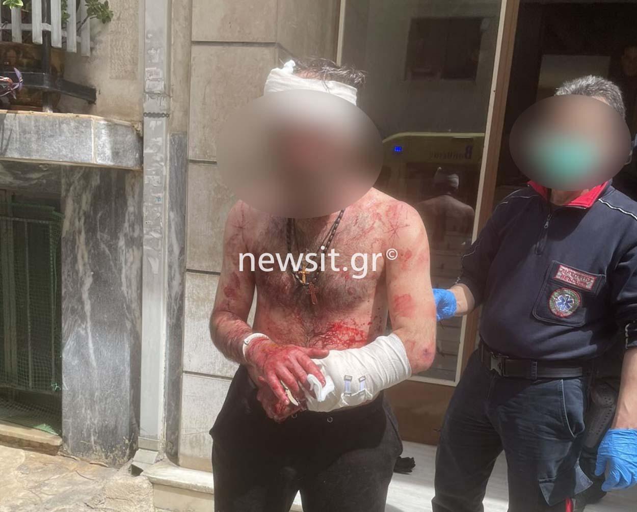 Απίστευτο περιστατικό στα Πατήσια! Μαχαίρωσε τον αδερφό του, αυτοτραυματίστηκε και επιτέθηκε σε αστυνομικό