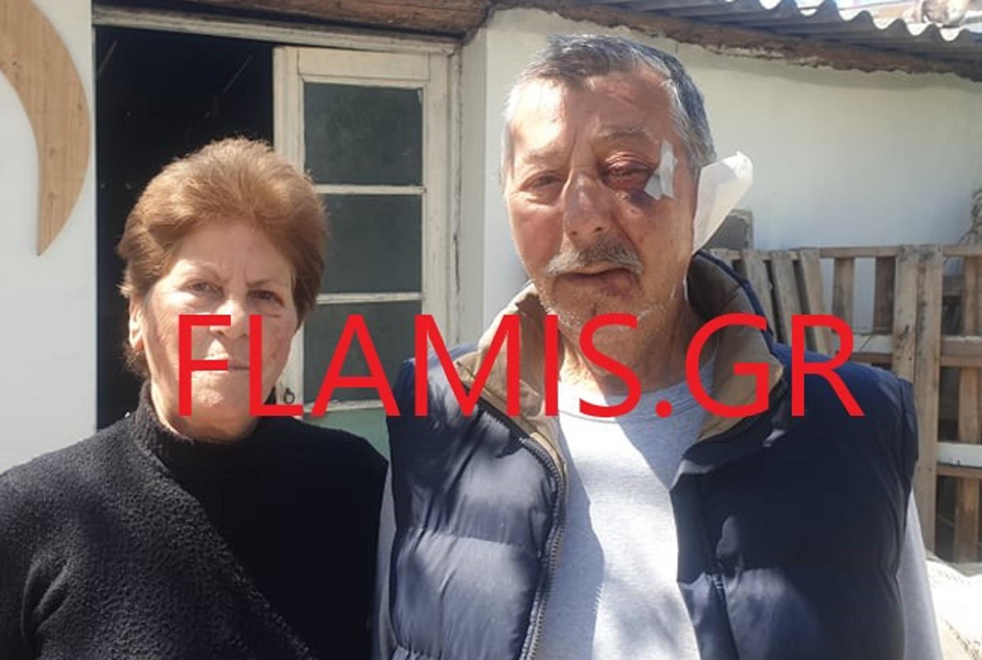 Αχαϊα: Ληστές – τέρατα σακάτεψαν στο ξύλο ζευγάρι – Η γυναίκα αναγνώρισε  δύο από τους βασανιστές της (video)
