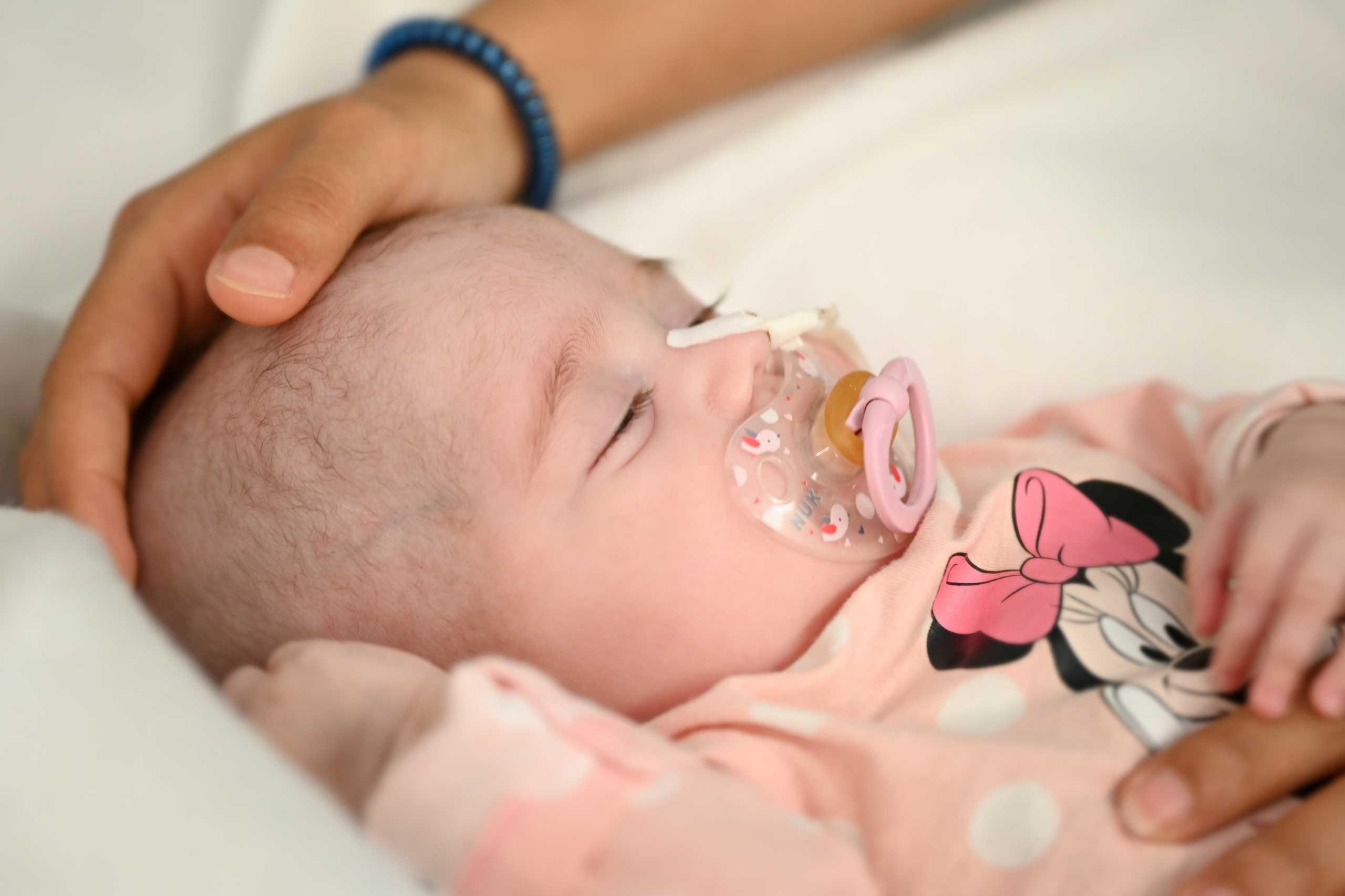 Κοριτσάκι 2 μηνών σώθηκε χάρη σε μια πρωτοποριακή μεταμόσχευση καρδιάς (pics)