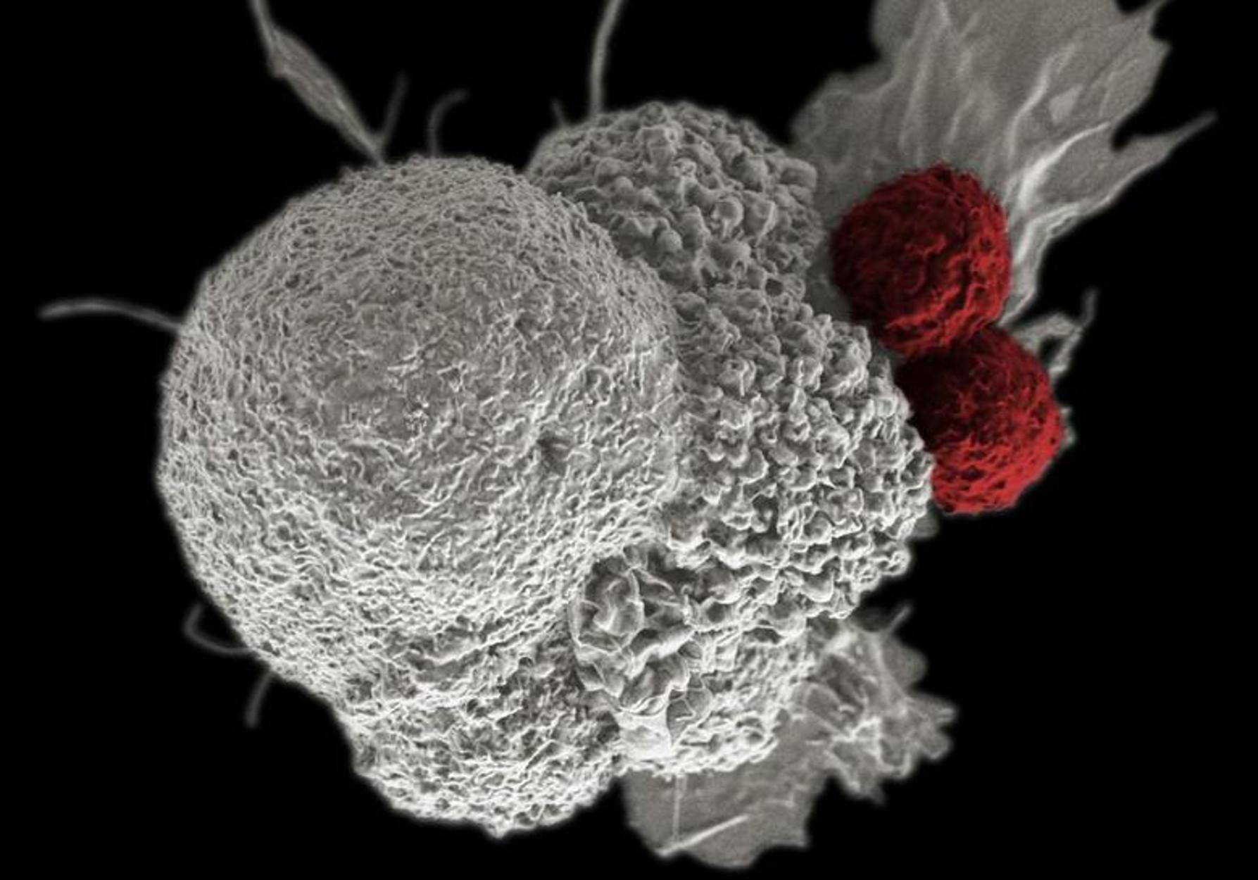 Θεραπεία του καρκίνου του εγκεφάλου με ελληνική «σφραγίδα»