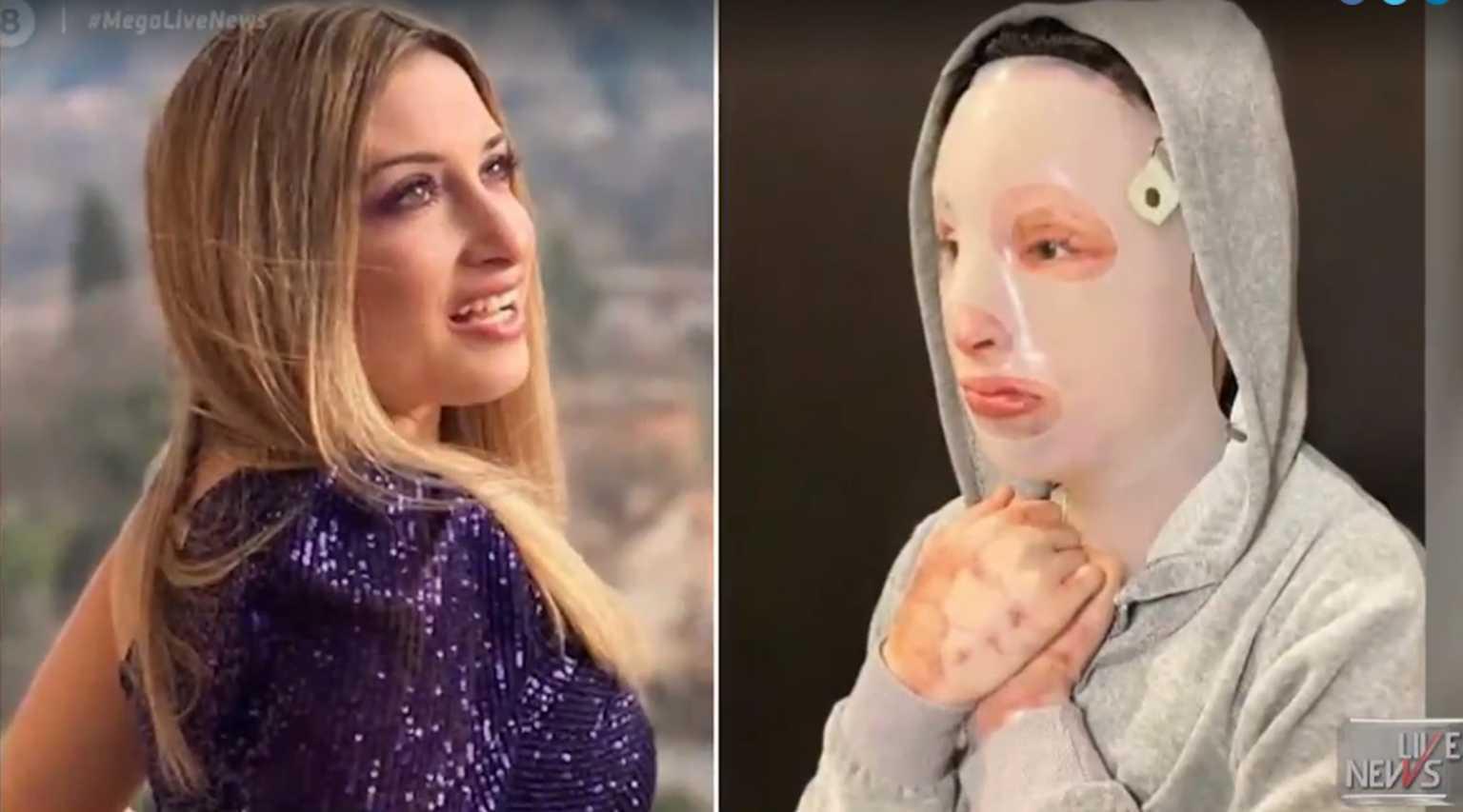 Επίθεση με βιτριόλι – Ιωάννα Παλιοσπύρου: Φωτογραφίες από το πρώτο χειρουργείο – Σκληρές εικόνες