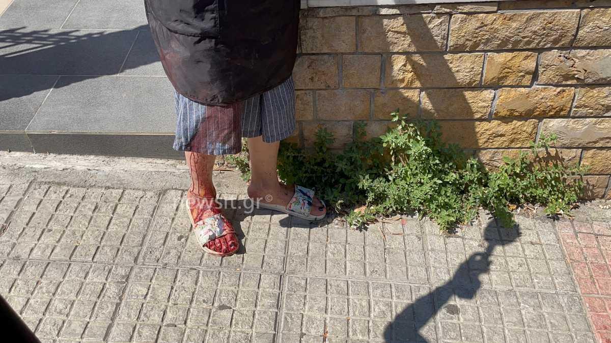Ζωγράφου: Καρέ καρέ πως έγινε η επίθεση με μαχαίρι – Συγκλονιστική περιγραφή στο newsit.gr