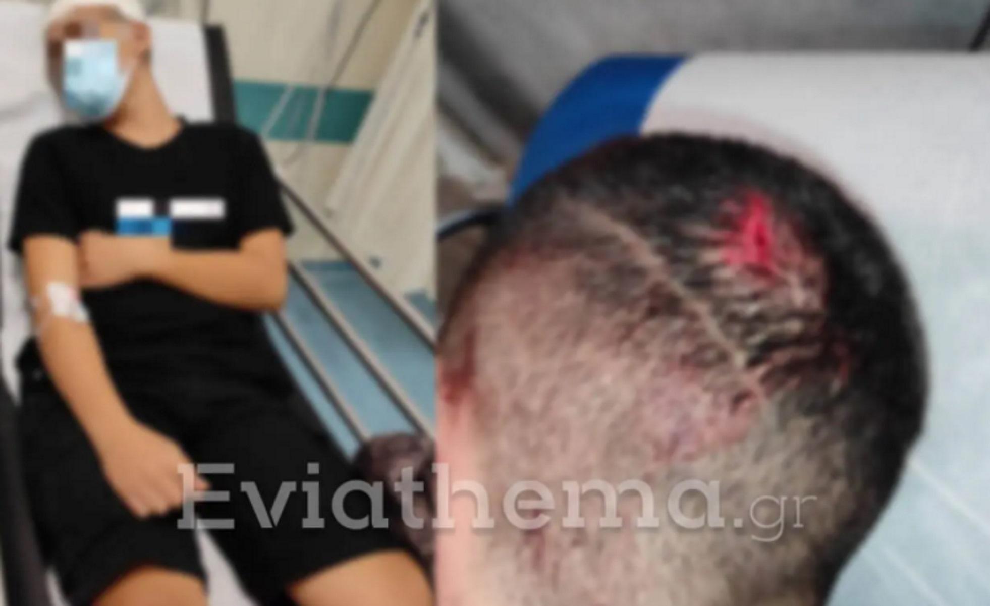 Αλιβέρι: 15χρονος σοβαρά τραυματισμένος στο κεφάλι από επίθεση 21χρονου κατόχου «μαύρης ζώνης»