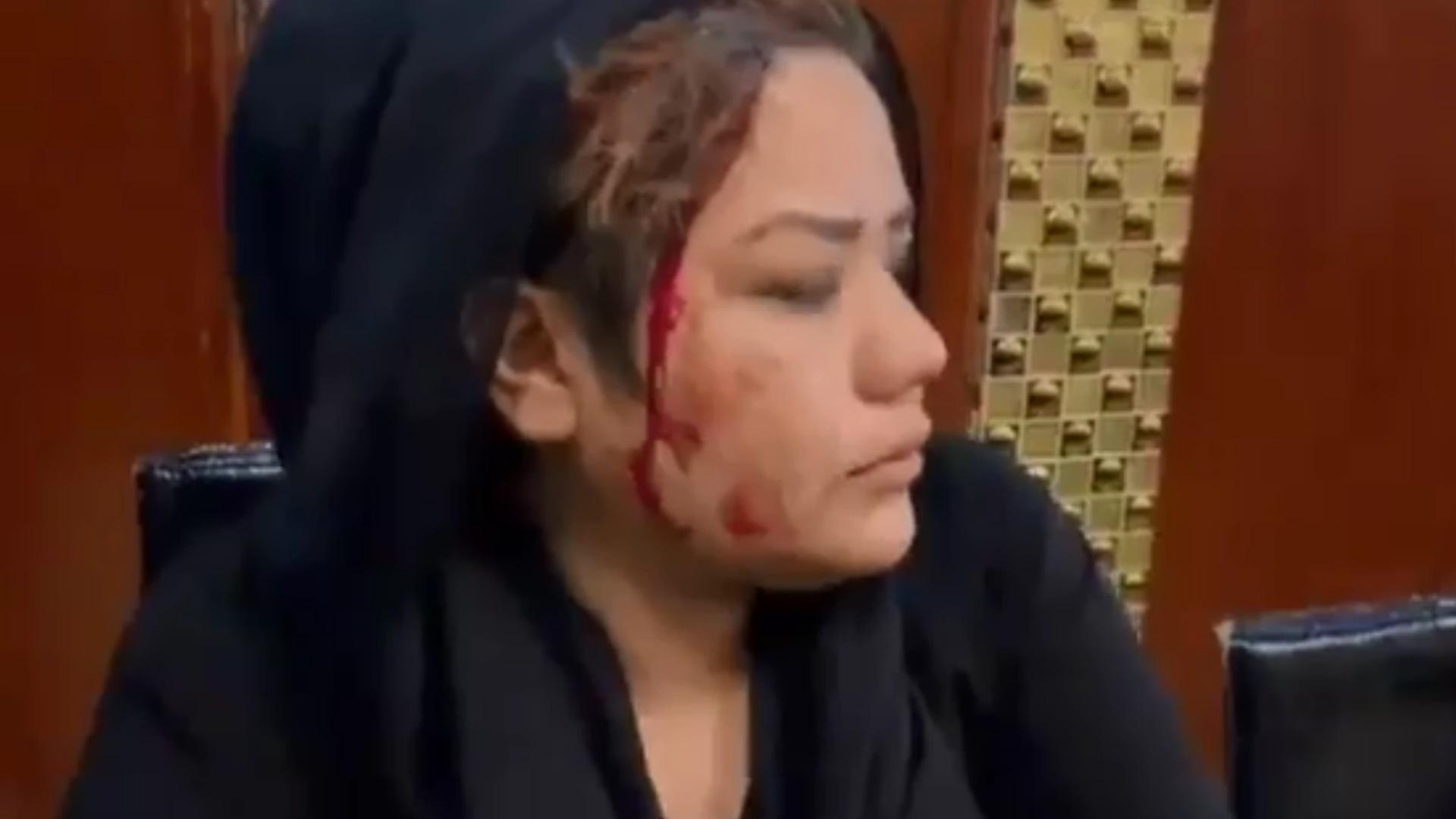 Αφγανιστάν: Γυναίκες αψηφούν τους Ταλιμπάν και βγαίνουν στους δρόμους – Βίντεο με δακρυγόνα και ξυλοδαρμούς