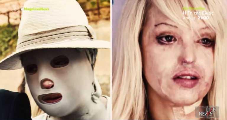 Επίθεση με βιτριόλι: Ιωάννα Παλιοσπύρου - Κέιτι Πάιπερ, δύο  ιστορίες με πολλές ομοιότητες