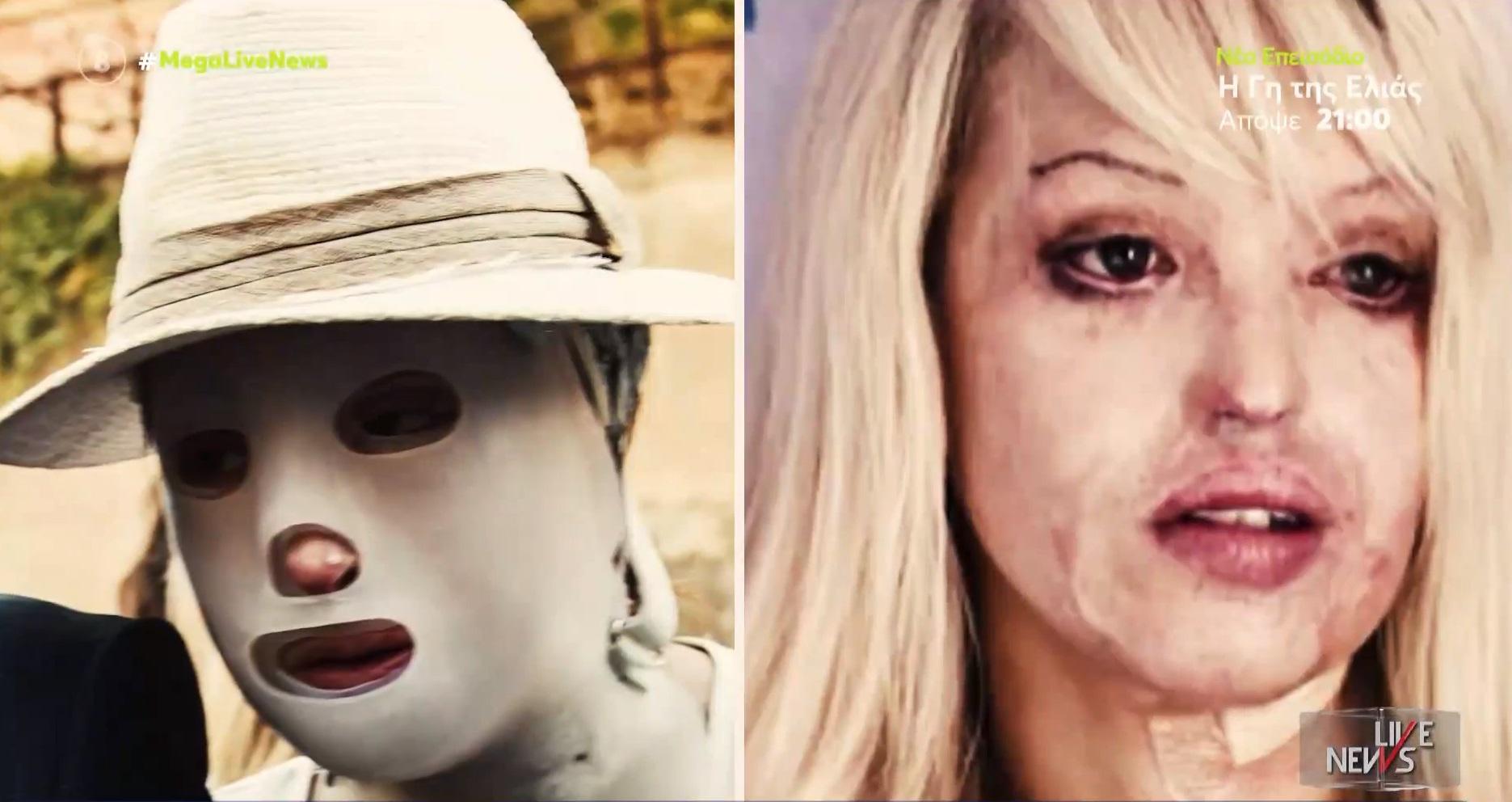 Επίθεση με βιτριόλι: Ιωάννα Παλιοσπύρου – Κέιτι Πάιπερ, δύο  ιστορίες με πολλές ομοιότητες