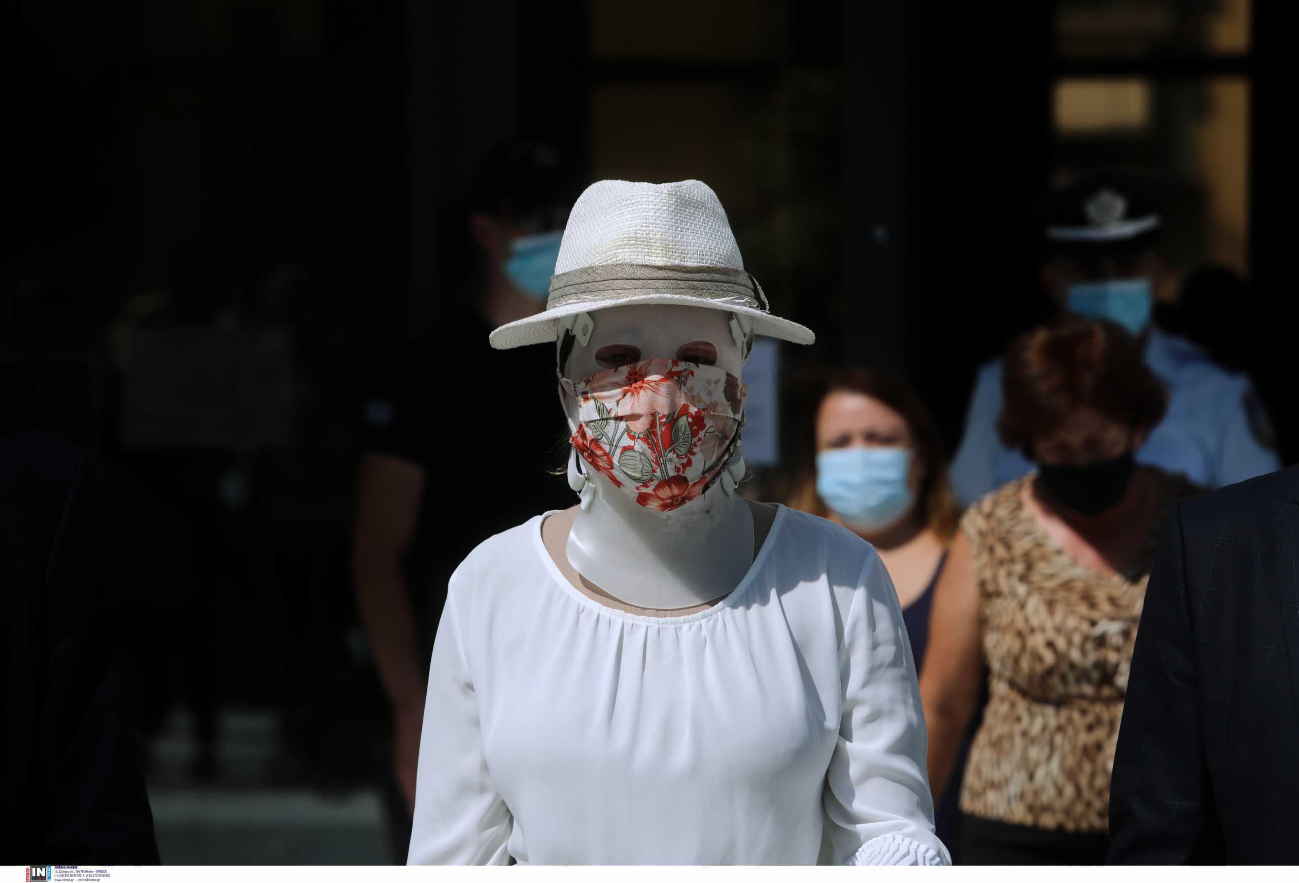Επίθεση με βιτριόλι: Καταθέτουν σήμερα οι γιατροί της Ιωάννας – Τι θα γίνει με τον 40χρονο