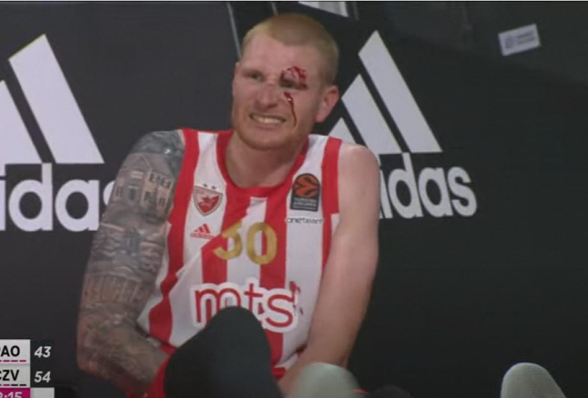 Παναθηναϊκός – Ερυθρός Αστέρας: Σοκαριστικός τραυματισμός Άαρον Ουάιτ