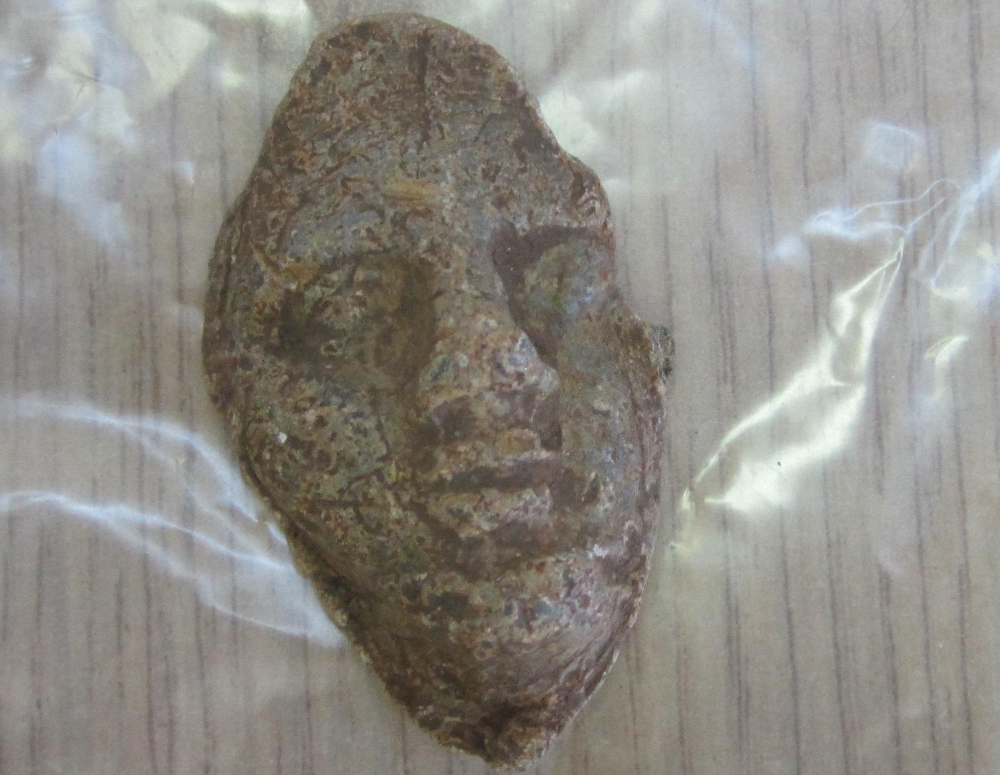 Θράκη: Ανακαλύφθηκε Βυζαντινός πολεμιστής που δεν παραδόθηκε ποτέ – Γιατί είχε χρυσό σύρμα στο σαγόνι του